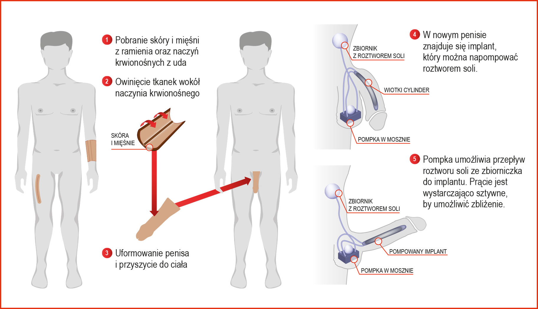 implant w penisie)